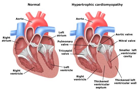 hypertrophic cardiomyopathy hcm cidg